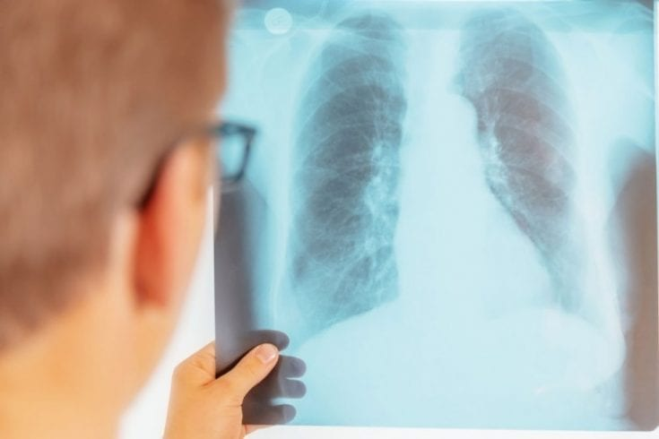 Stem Cell Treatment For Lung Cancer The Best Of Health