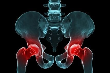 types of hip replacement