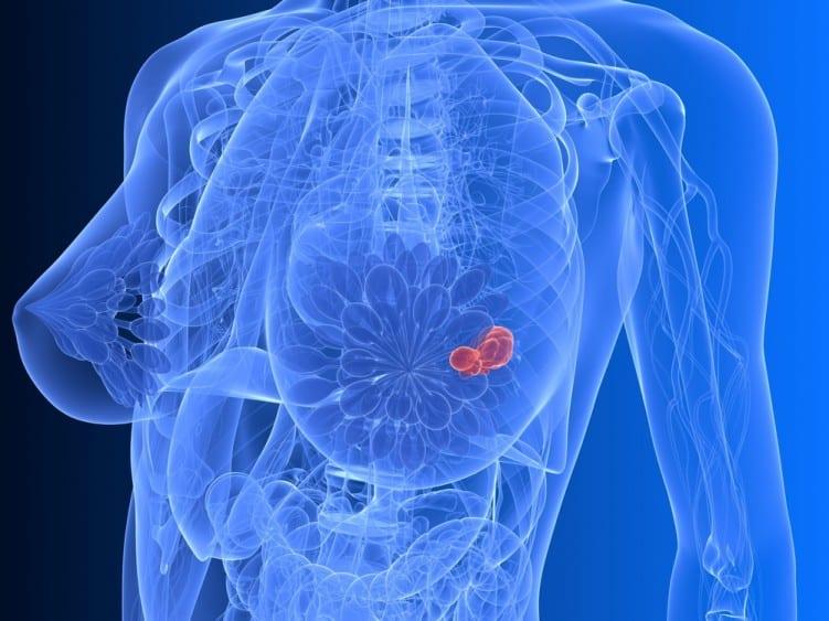 Breast cancer diagrm
