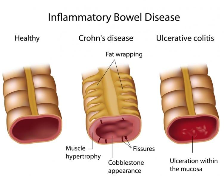 Crohns & IBD