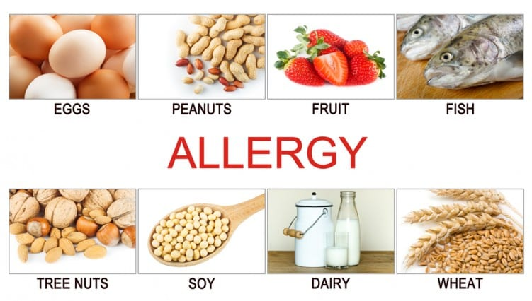 Food allergy items