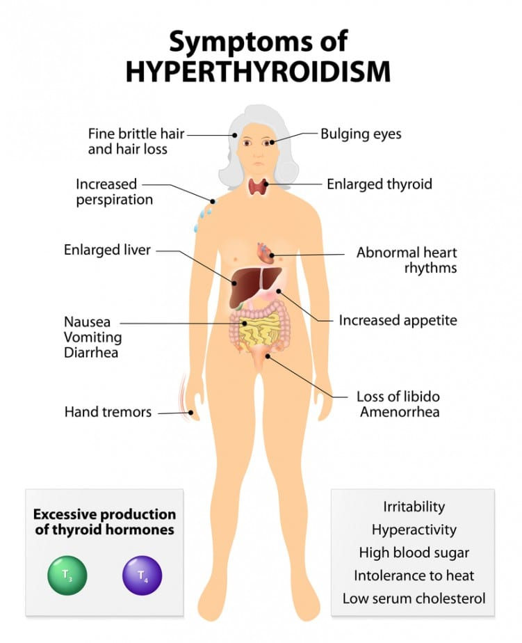 Hyperthyroidism symptoms