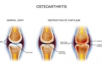 Understanding Osteoarthritis And Living With The Condition