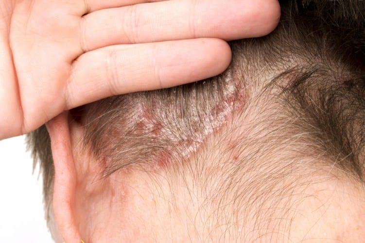 psoriasis scalp