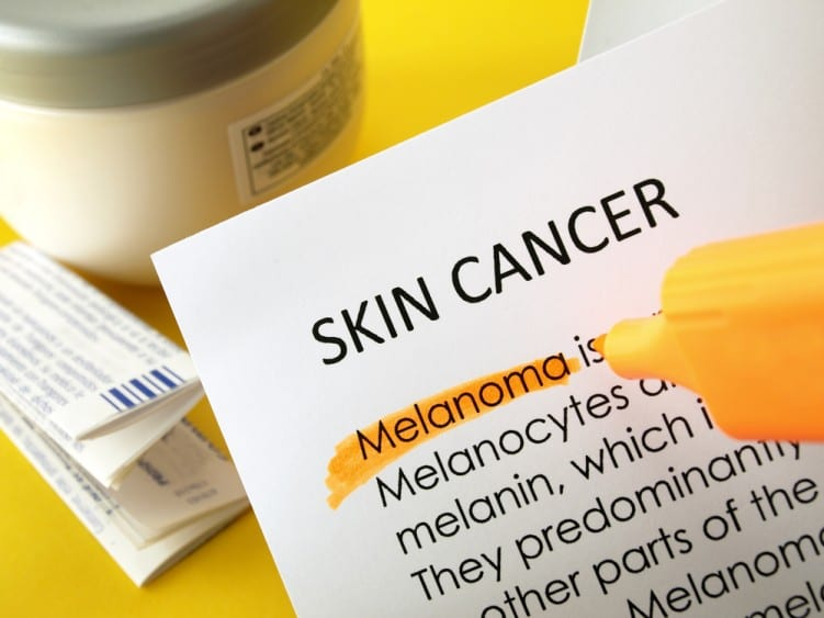 Skin cancer Melanoma words