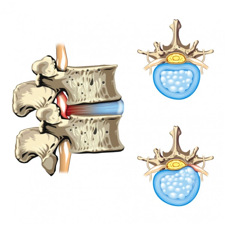 Slipped disc diagram
