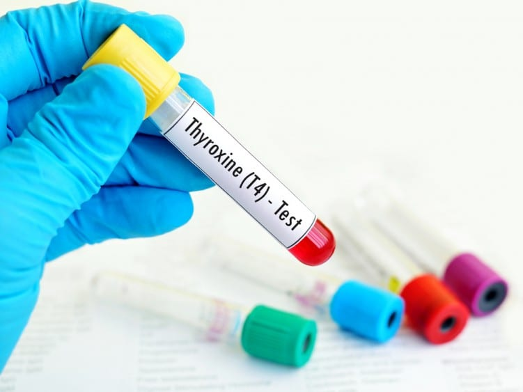 Thyroxine blood test