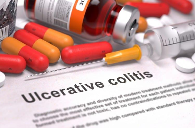 ulcerative-colitis-general
