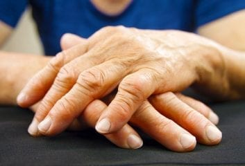 Can Cracking Your Knuckles Cause Arthritis? 1