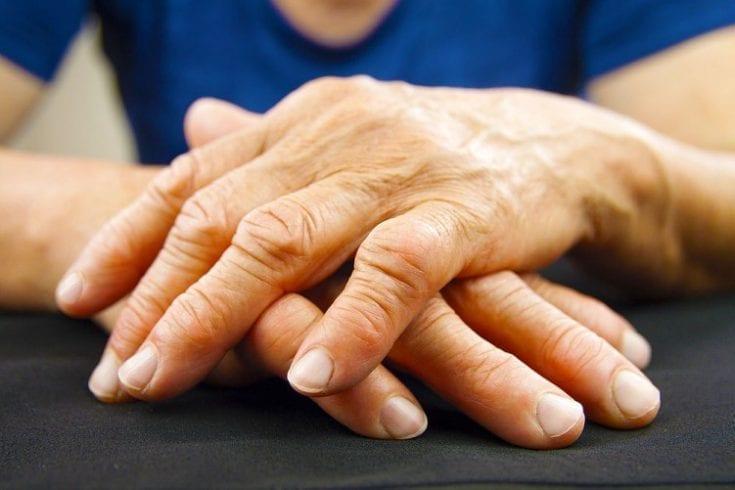 arthritis-197319983