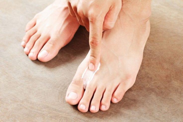 athletes-foot-108862136