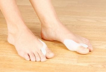 Bunions: What's the Best Way to Rid Your Feet of This Unsightly Condition?