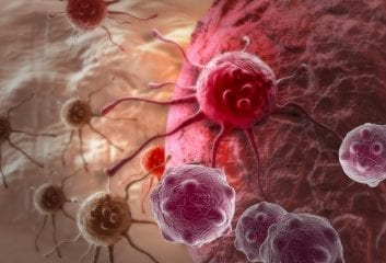 UK Cancer Survival Rates Below European Average