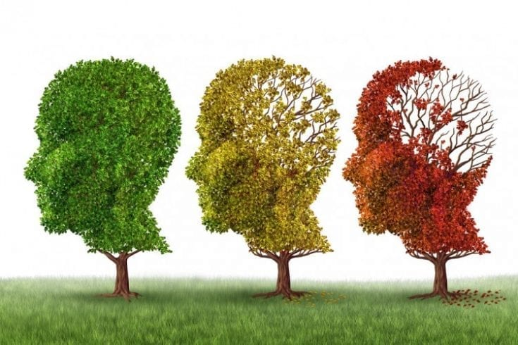 dementia-alzheimers-264060908
