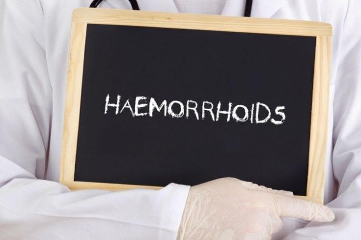 haemorrhoids-175041005