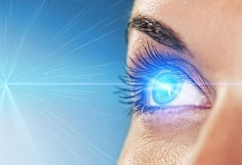 laser eye surgery lasik