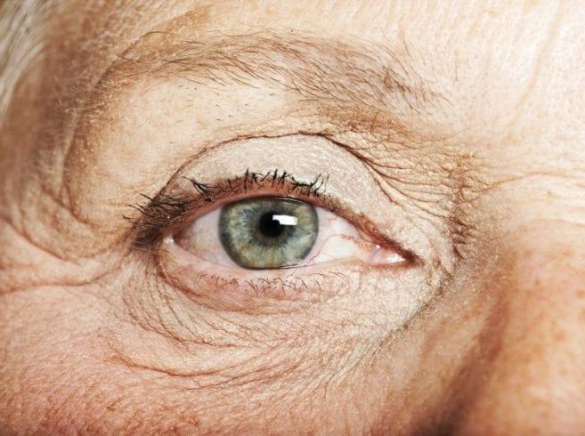 minimise-wrinkles-107349326