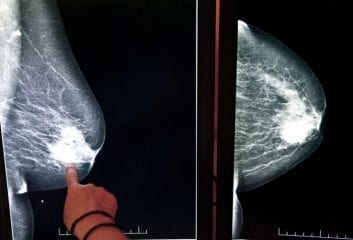 Osteoporosis Drug Could Save Thousands of Breast Cancer Patients