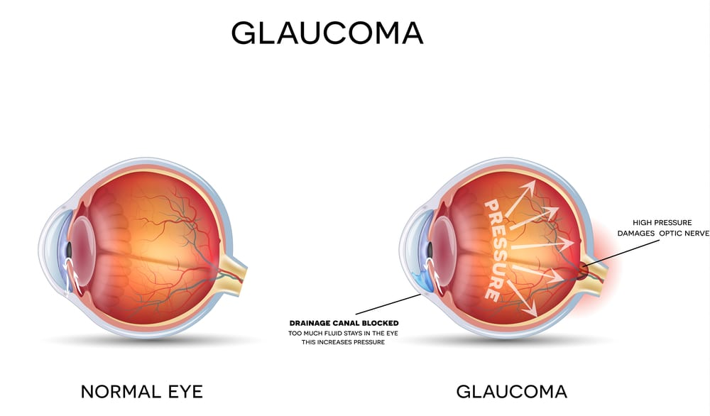 Beware Glaucoma - The Sneak Thief of Sight