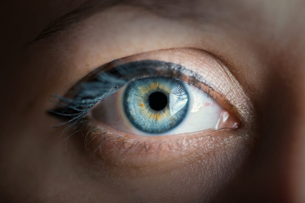 glaucoma cataracts AMD