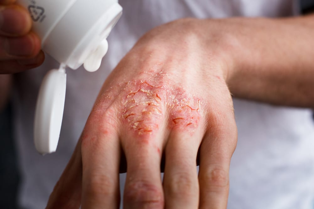 Keep Your Eczema Under Control With These Quick Tips The