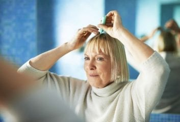 thinning hair baldness in women