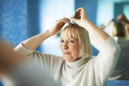 thinning hair baldness in women
